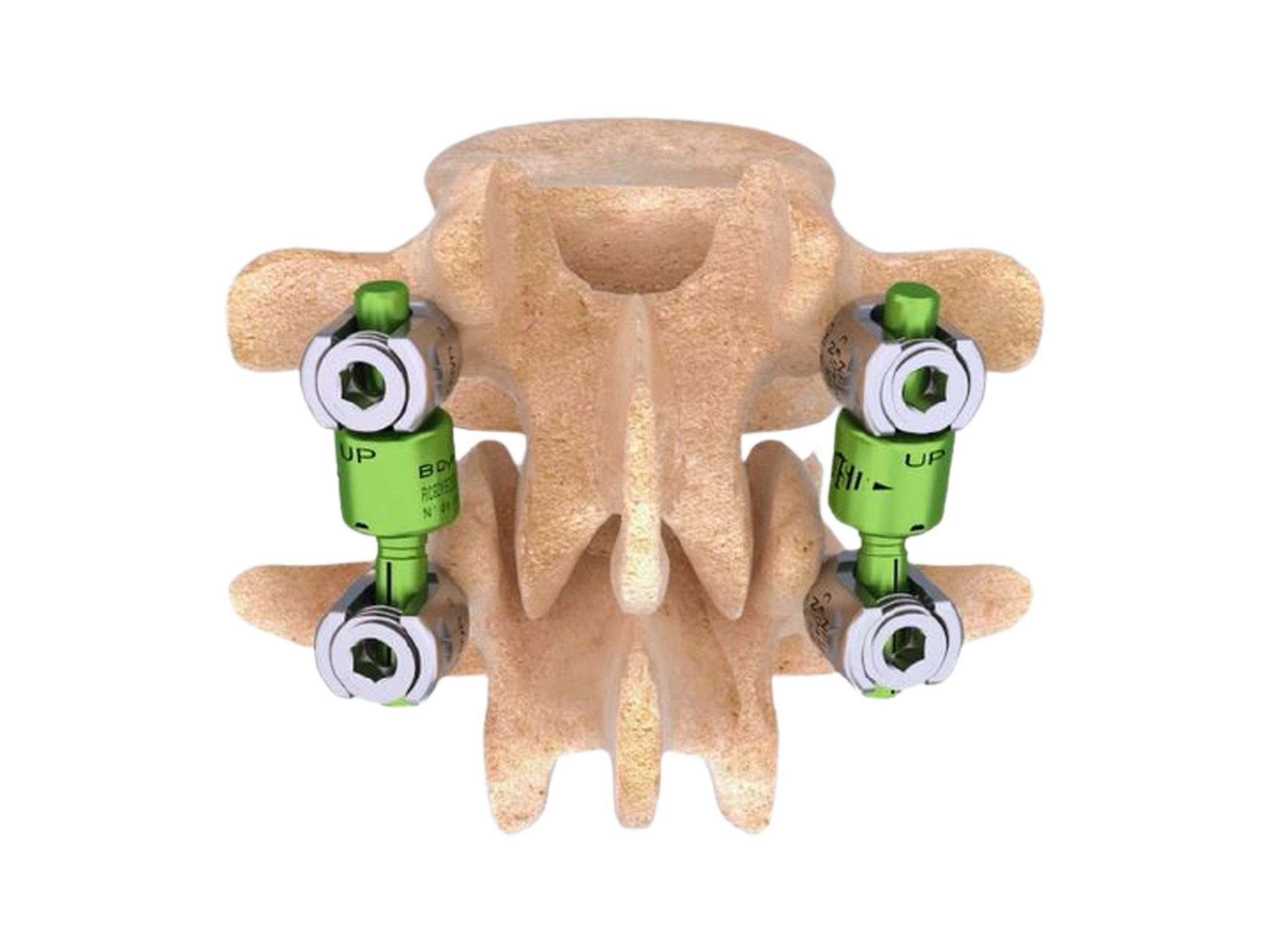 Cousin Surgery BDyn implant - Posterior dynamic motion preservation system which is designed for application from thoracic vertebrae T10 to sacrum S1.
