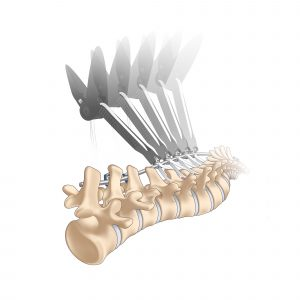 Cousin Surgery Naja® Implant - Correction and stabilization of the spine during fusion of the instrumented levels.
